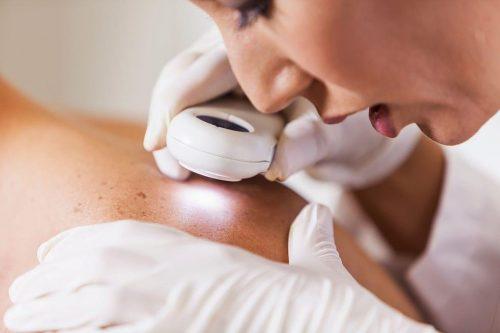 dermatologo-valencia